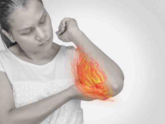Freie Gelenkkörper und Arthrose