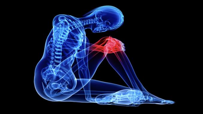 Kniearthrose erste Anzeichen