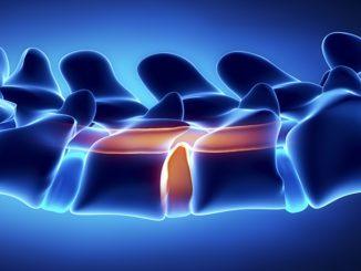 Gleitwirbel Arthrose