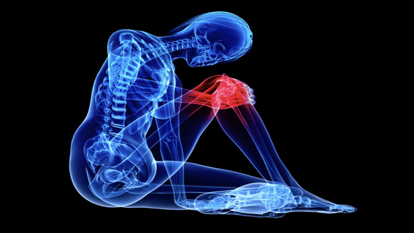 Was ist eine Kniegelenk-Arthrose