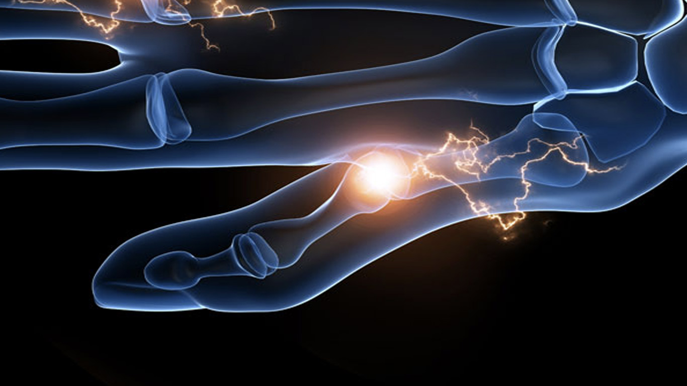 Was ist eine Rhizarthrose?