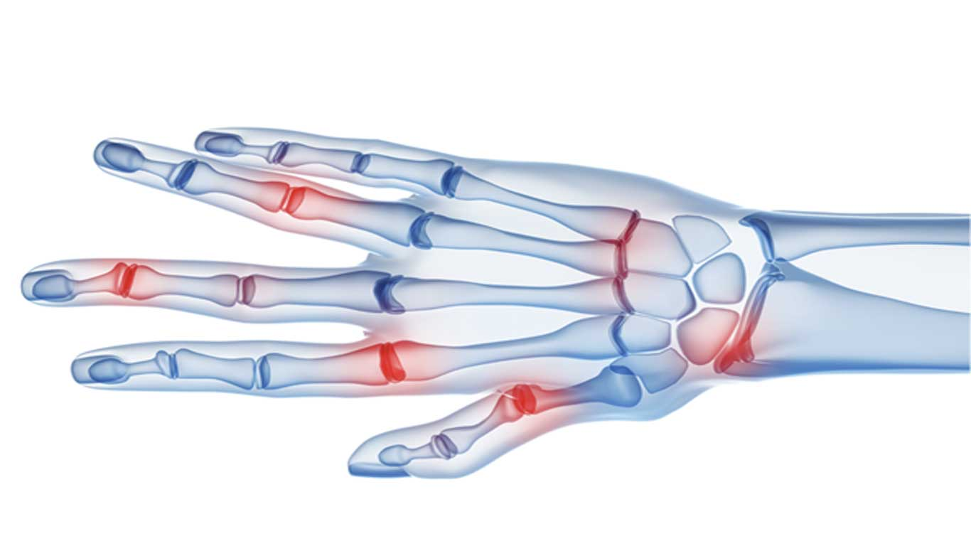 Was ist eine Finger-Arthrose?