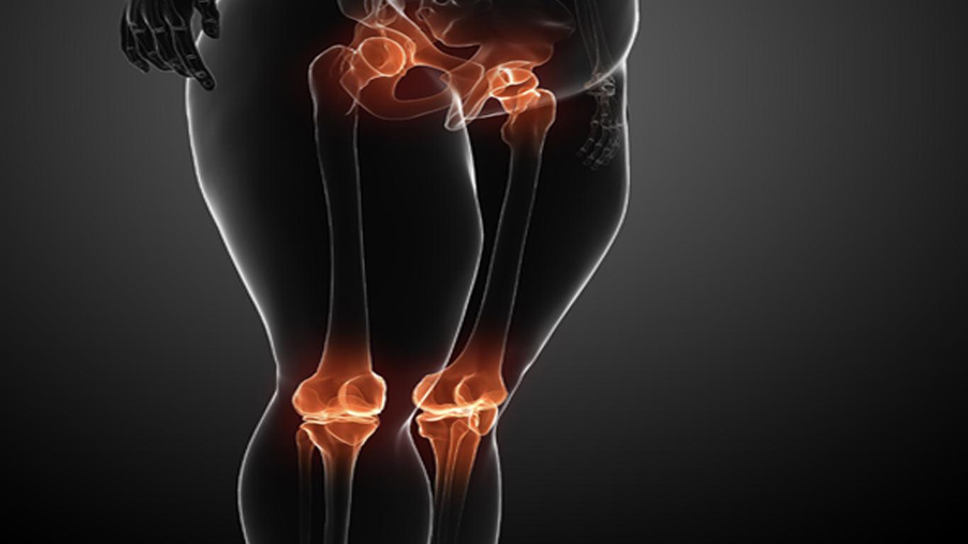 Was ist eine Charcot Arthrose?