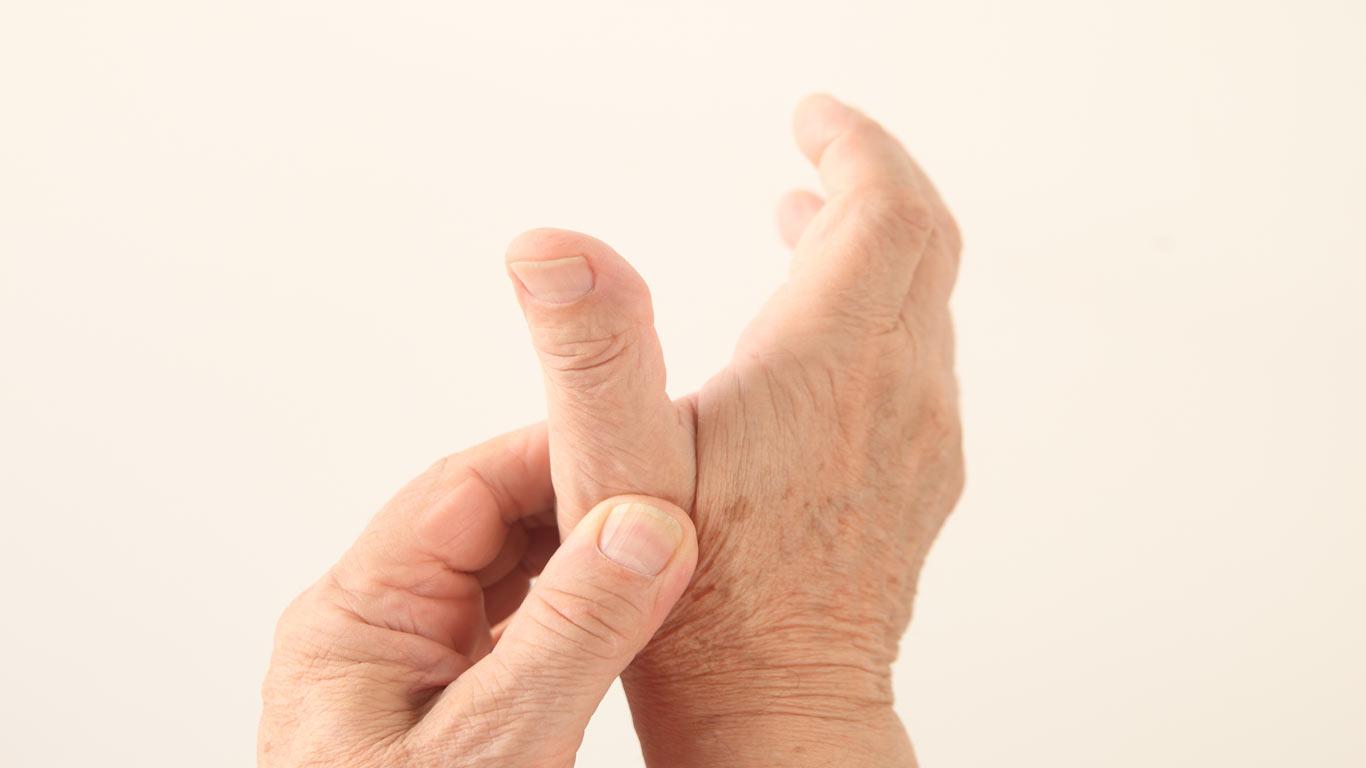 Sattelgelenk Arthrose Symptome