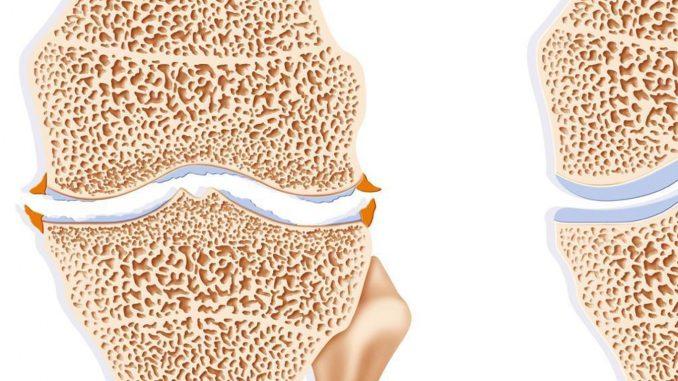 Osteophyten bei Arthrose